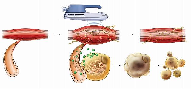 脂肪細胞の分解